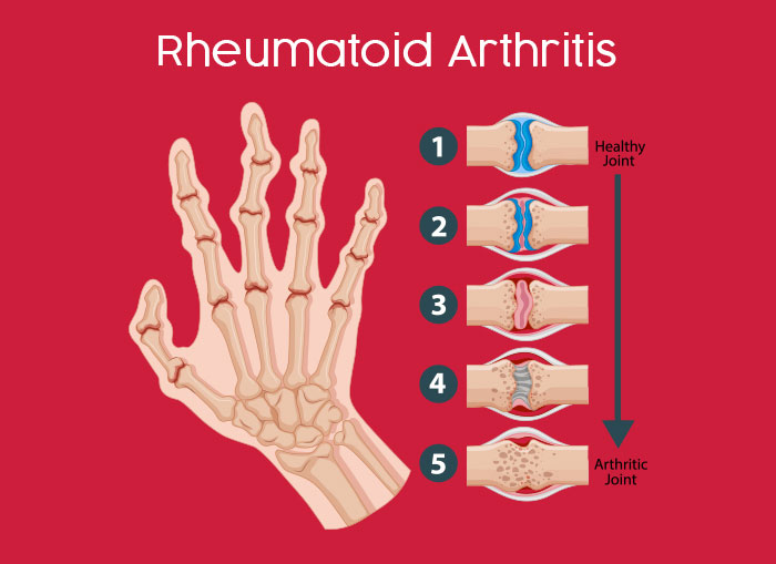 CBD Oil for Rheumatoid Arthritis